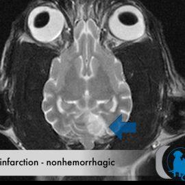 Brain Infarction – Nonhemorrhagic