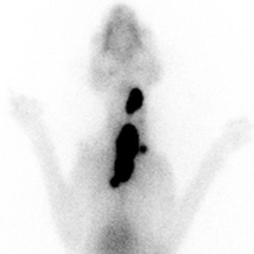 The facts about thyroid scintigraphy.