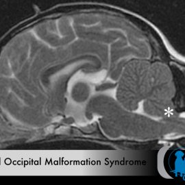 Caudal Occipital Malformation Syndrome – COMS