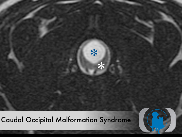 Caudal Occipital Malformation Syndrome
