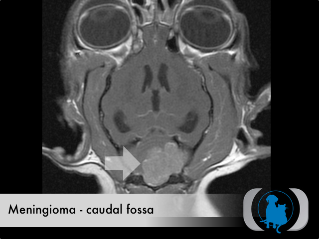 Meningioma caudal fossa